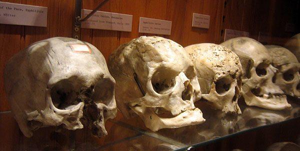 mutter-museum-adopt-skull